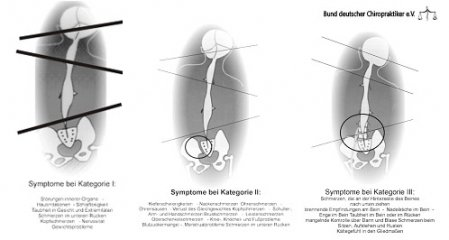 Chiropraxis-Juras Sacro Occipital Technik